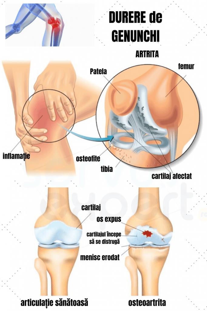 varză din cartofi de dureri articulare