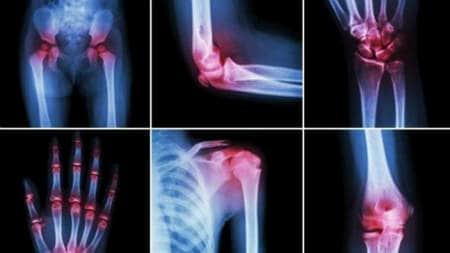 dureri de noapte la nivelul articulațiilor la copii