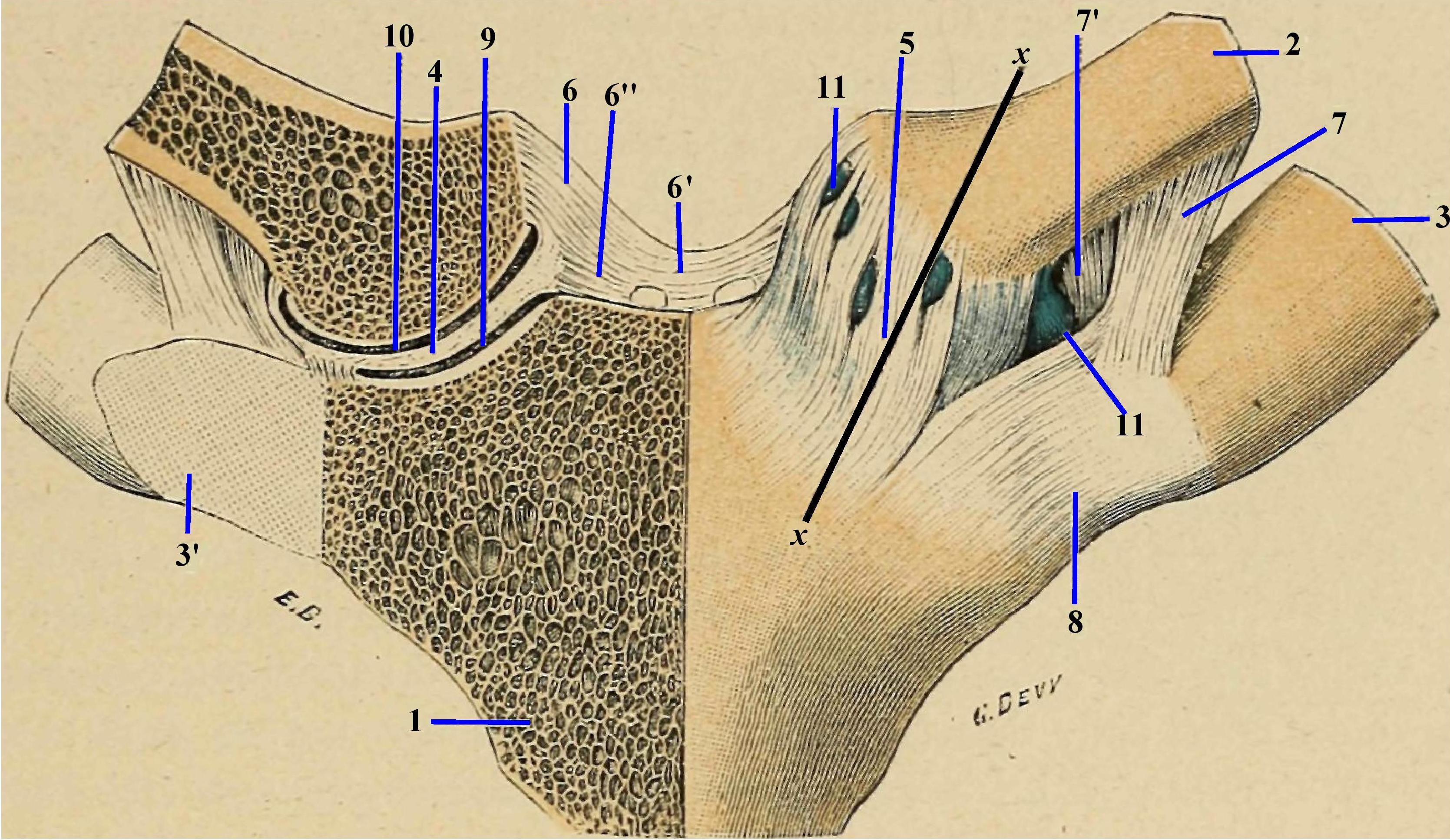 tipuri de tratament cu artroză