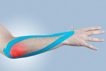 Epicondilita mediala si laterala