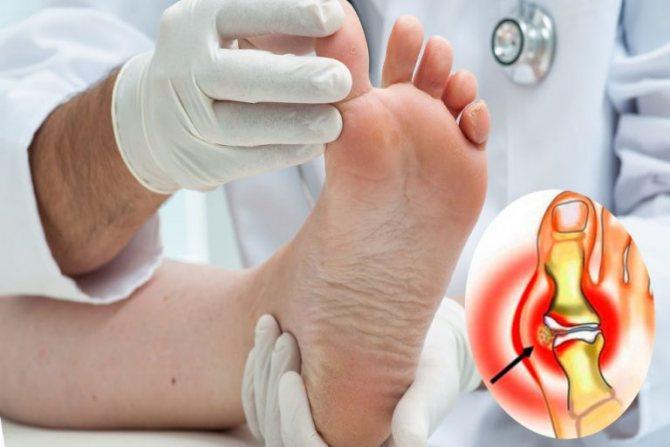 de ce doare articulația de pe deget periartrita humeroscapulară a simptomelor și tratamentului articulației umărului