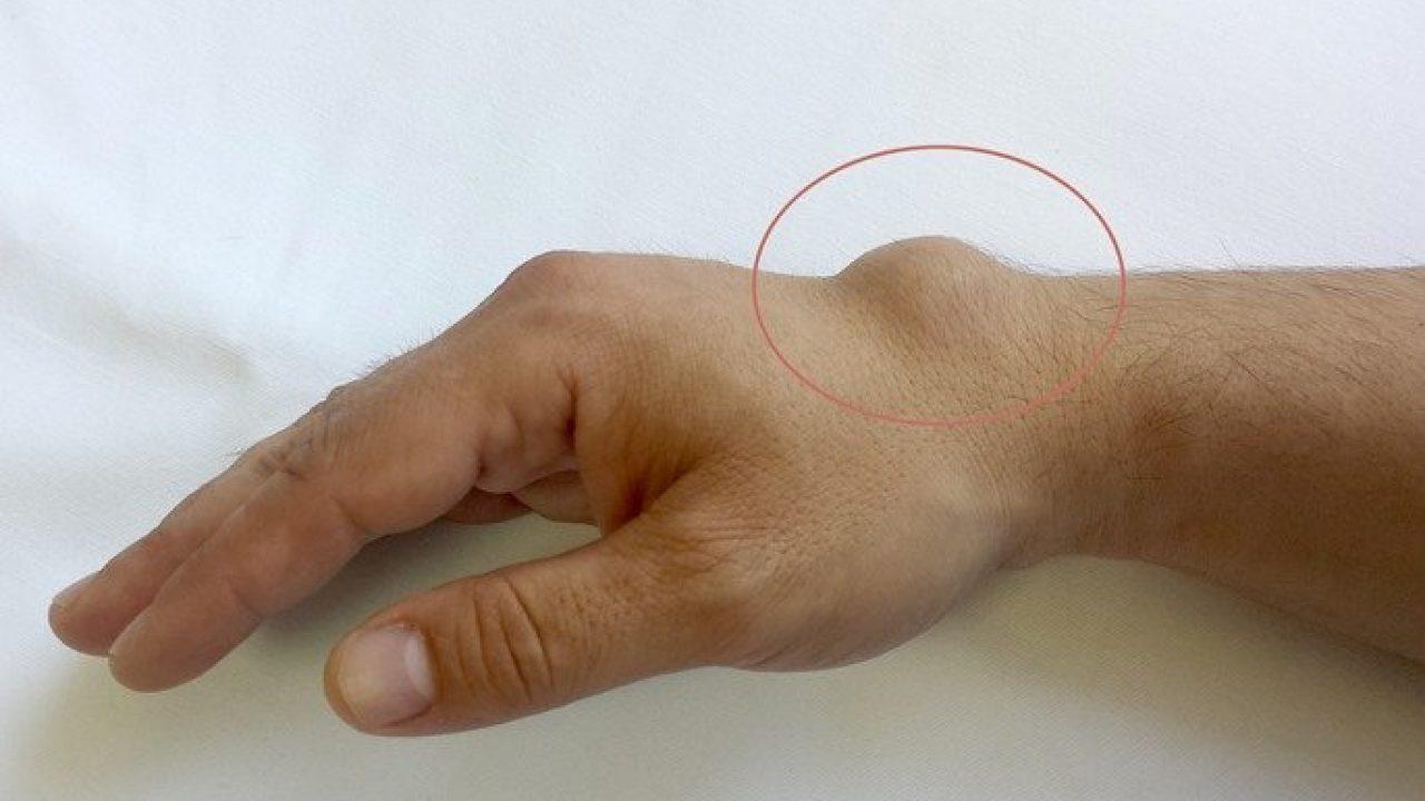 ligamente cruciate ale genunchiului gel pentru articulații albine