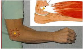 hipotermia articulației genunchiului cu artroză dureri musculare sub genunchi