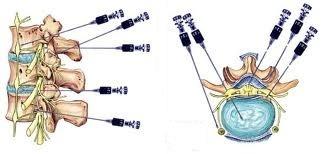 infiltratii lombare artrita artroza simptomelor articulației cotului și tratament