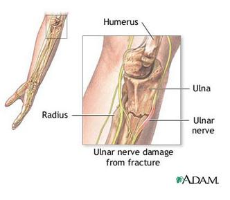 interiorul articulației cotului doare după tragere în sus edem inflamator articular