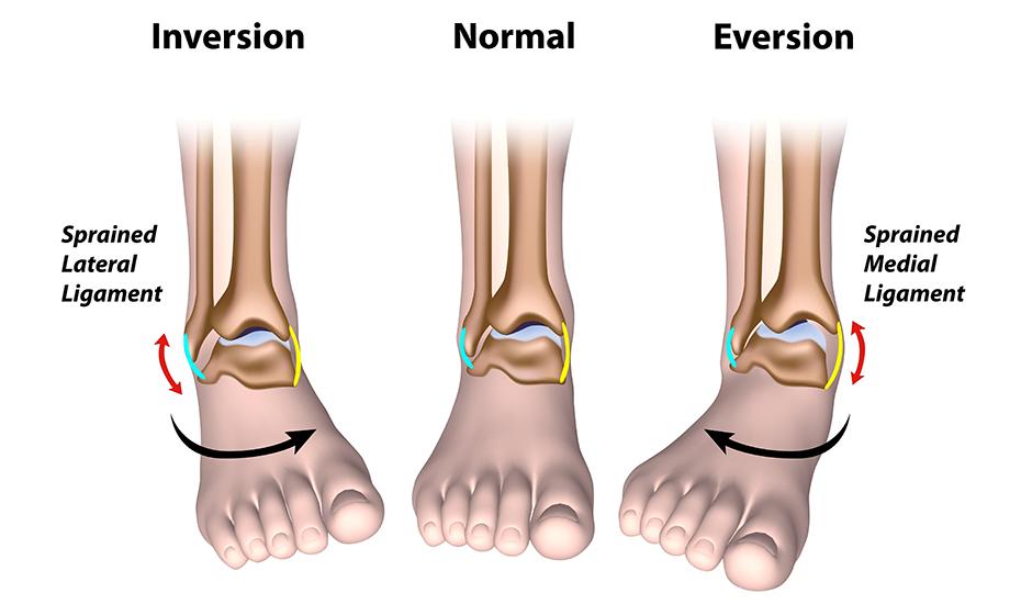tratamentul scoliozei genunchiului inflamația piciorului de gâscă a genunchiului