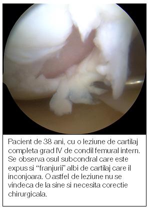 cani pentru artroza genunchiului