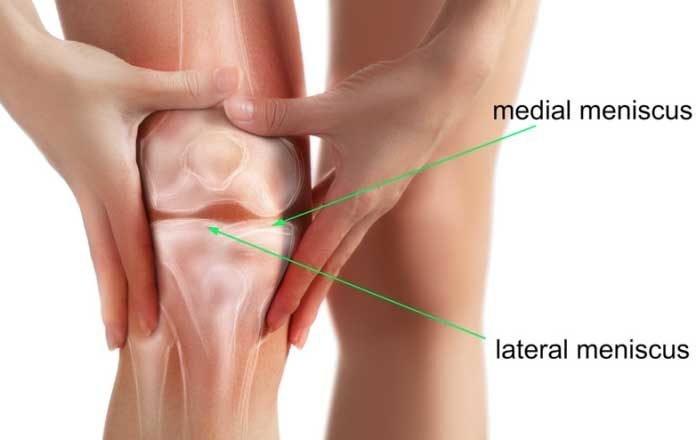 meniscus deteriorarea tratamentului articulației genunchiului
