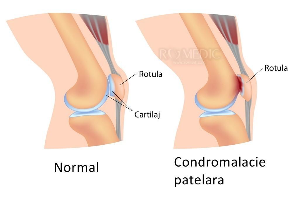 Numele bolii articulației genunchiului genunchi - antiincendiubrasov.ro