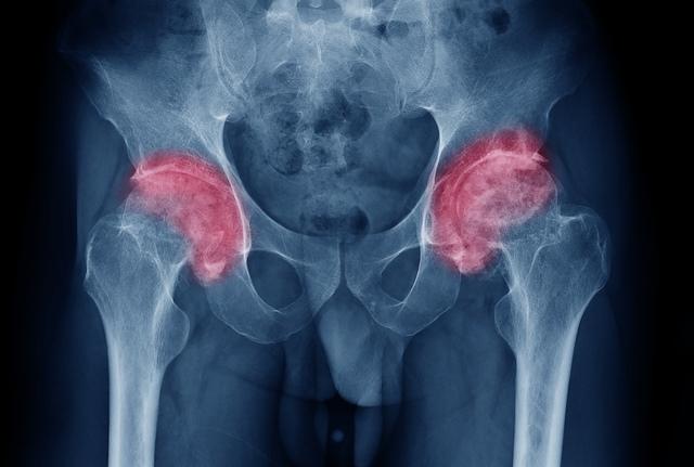 tratament comun cu furnică durere acută când mergeți în articulația șoldului