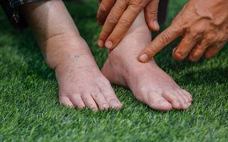 picioare umflate si vinete cum să tratezi artroza cu ce medicamente