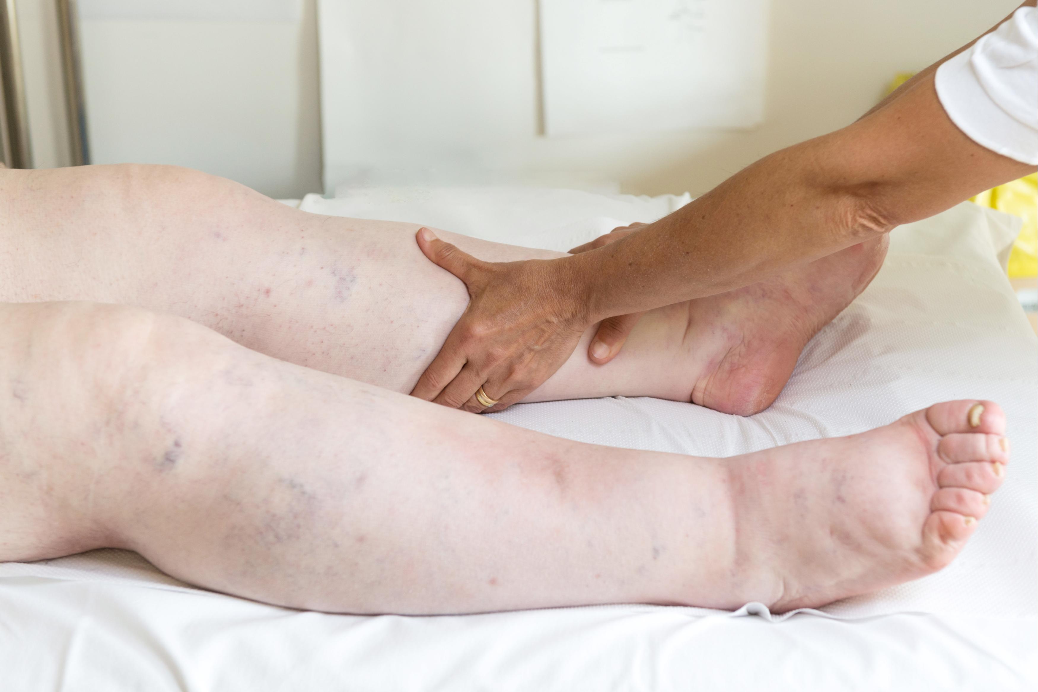 picioare vinete si umflate ce plante medicinale pentru durerile articulare