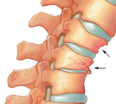 Tehnică revoluţionară de refacere a cartilajelor