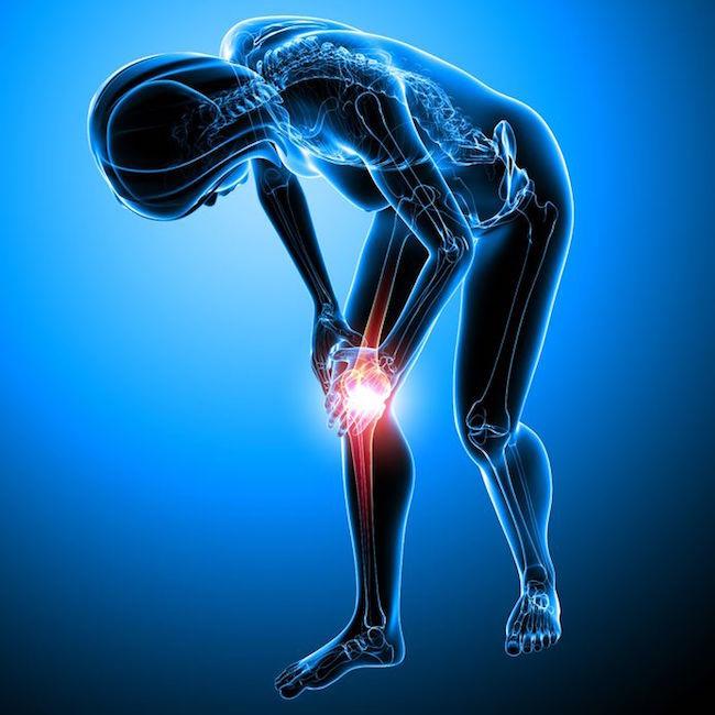 simptome de osteoporoză și tratamentul genunchiului artroza articulațiilor picioarelor poate fi încălzită