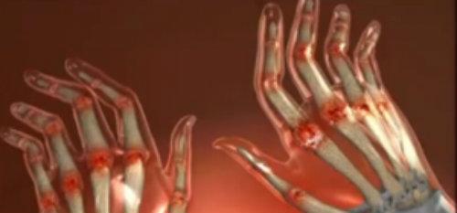 tratamentul articulațiilor prin gură cu artrita reumatoidă a mâinilor