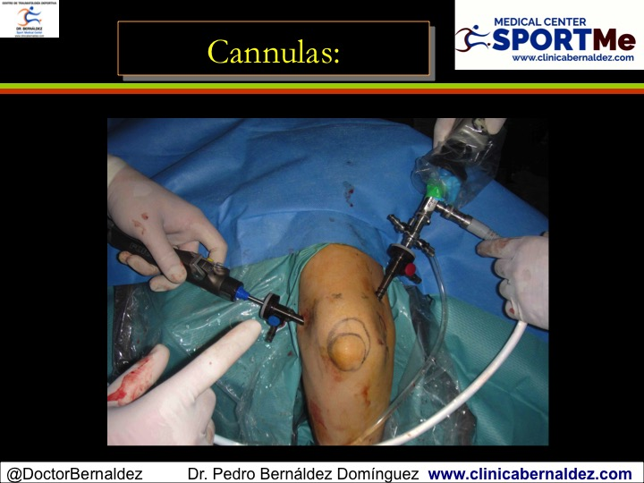 ciprolet din dureri articulare articulația genunchiului drept