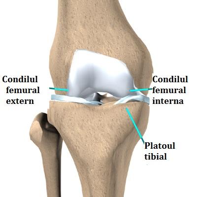 tratamentul fracturilor de condil condil edem la genunchi și durere