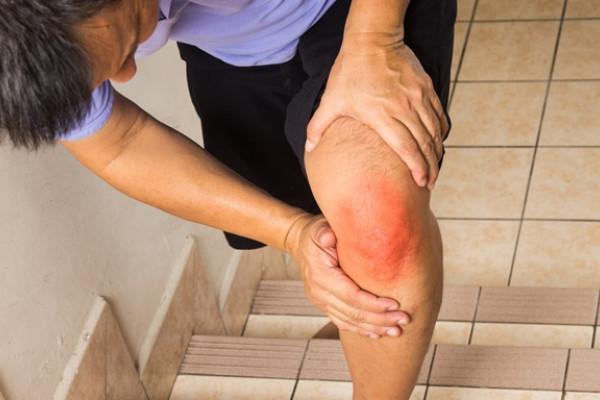 umflarea genunchilor durerea articulațiilor genunchiului preparate articulare creak