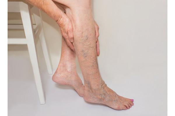 dureri la nivelul articulațiilor picioarelor în cot