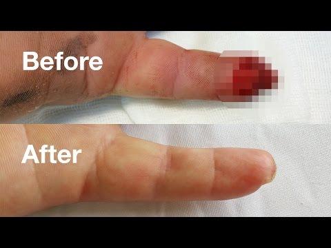 artroza displazică a articulațiilor șoldului numele unguentului din articulațiile picioarelor