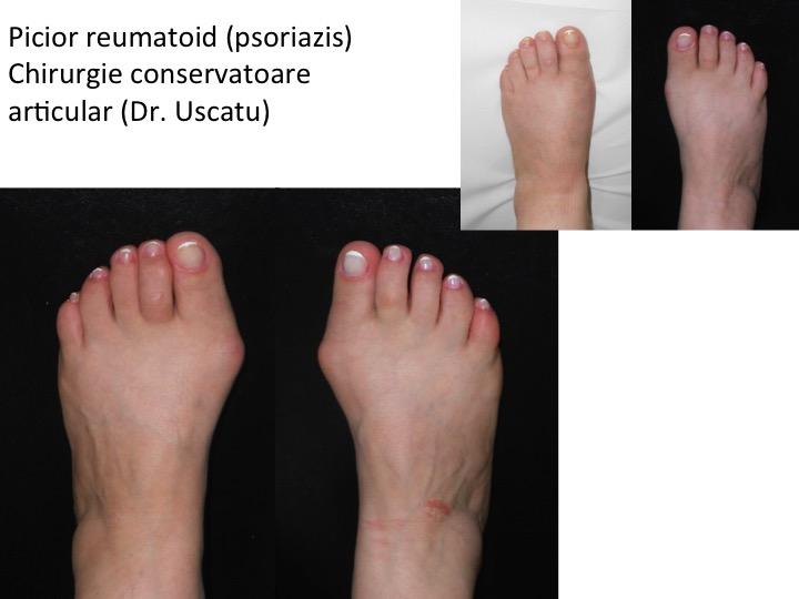 artrita piciorului și a degetelor de la picioare pentru durere în exercițiul articulațiilor gâtului