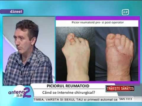 artroza posttraumatică a tratamentului degetelor de la picioare medicament pentru ligamente și articulații