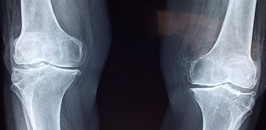 ameliorarea durerii după fractura articulară