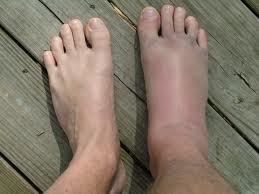 dureri de genunchi Preț gel de carmolis articular
