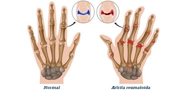 artrita articulației vnch