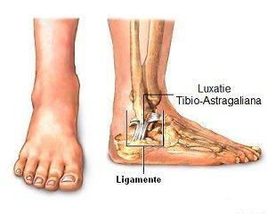 sfătuiți tratamentul artrozei genunchiului medicament pentru repararea țesutului conjunctiv