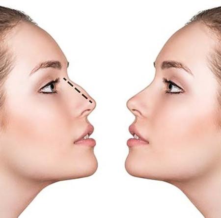 Corecția nasului (rinoplastia)