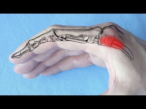 dureri de zbor în articulațiile mâinilor unguente pentru gât cu osteochondroză