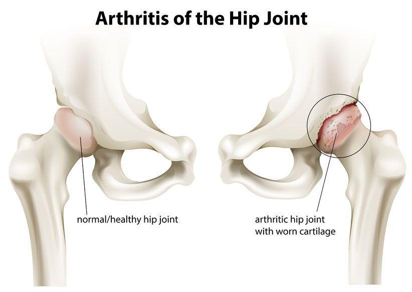 artroza displazică a articulațiilor șoldului artroza tratamentului simptomelor articulației cotului