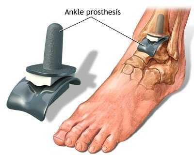artroza tratamentului articulației gleznei cu pastile