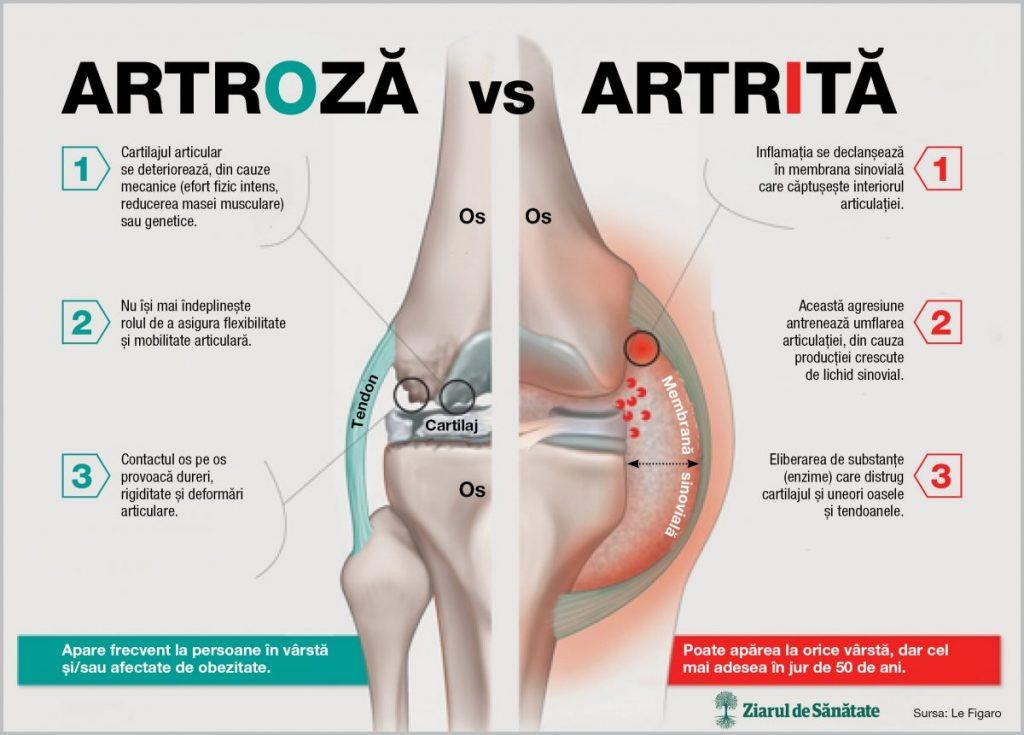 artrita artroza tratament