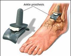 revărsare în tratamentul articulației gleznei