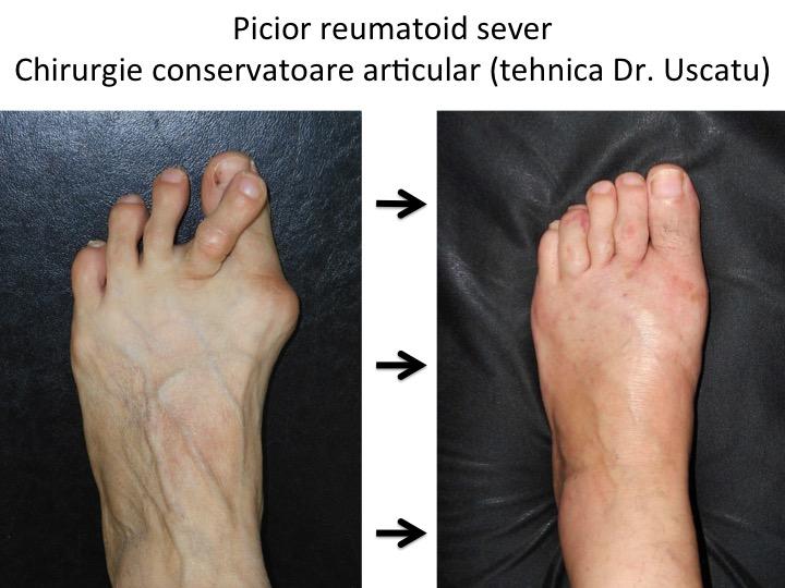 artrita piciorului și a degetelor de la picioare medicament comun Preț
