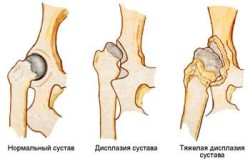șolduri ale articulației șoldului