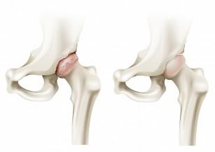 artroza deformantă a tratamentului articulațiilor genunchiului și recenzii