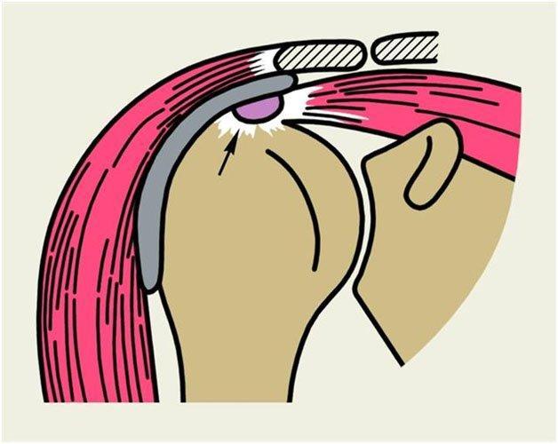 tratamentul imobilității articulațiilor umărului gonartroza articulației șoldului tratament de 1 grad